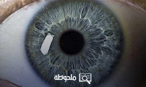 قرنية العين المخروطية