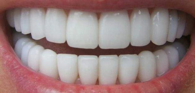 طريقة تبييض الاسنان المنزلي طريقة تبييض الاسنان المنزلي