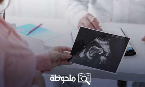 طرق تساعد على الحمل السريع