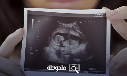 متى يظهر الحمل بتوأم فى السونار