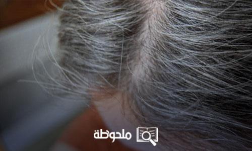 علاج الشعر الابيض المبكر
